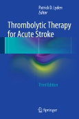 Thrombolytic Therapy   for Acute Stroke