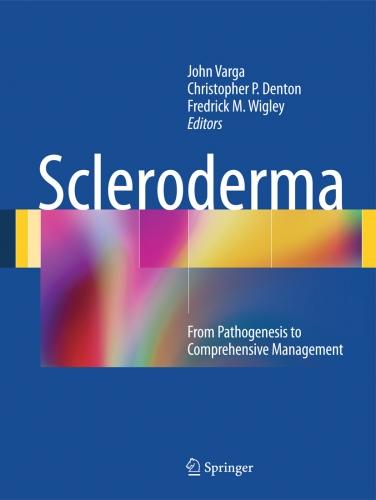 scleroderma essay